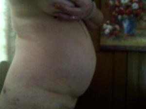 stomach 6 April 13